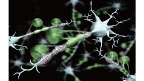神経変性模式図-1